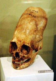 museum-skull